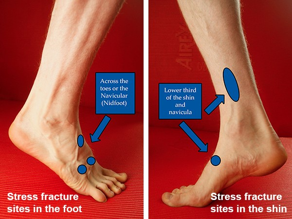 Common stress fracture sites in the foot and shin